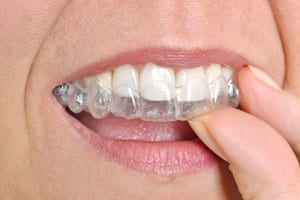 Invisilign Tooth Mold